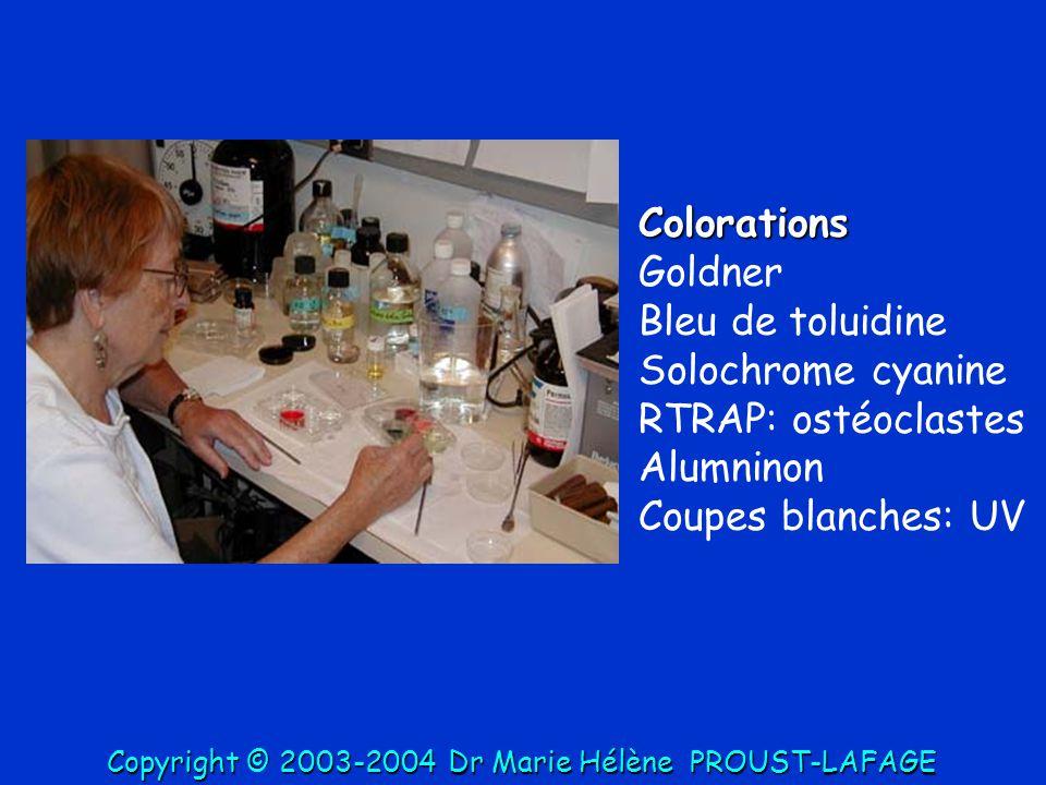 Colorations Goldner Bleu de toluidine Solochrome cyanine RTRAP: ostéoclastes Alumninon Coupes blanches: UV Copyright © 2003-2004DrMarie Hélène PROUST-