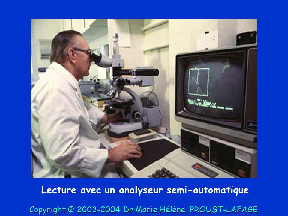 Mesure des surfaces: suivez le point vert = pt lumineux projeté Copyright © 2003-2004DrMarie Hélène PROUST-LAFAGE Copyright © 2003-2004 Dr Marie Hélène PROUST-LAFAGE