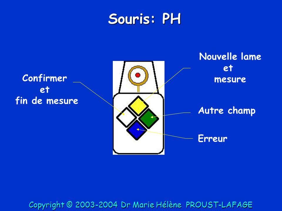 Distances, d: click-click bouton jaune (on lève le doigt en A et en B) AB d Longueurs, l: PA: Click début doigt appuyé on lève le doigt en fin de mesure AB l PH: programme humain, PA: programme animal PH: Click début doigt appuyé on lève le doigt en fin de mesure et on appuie sur le bouton vert AB l