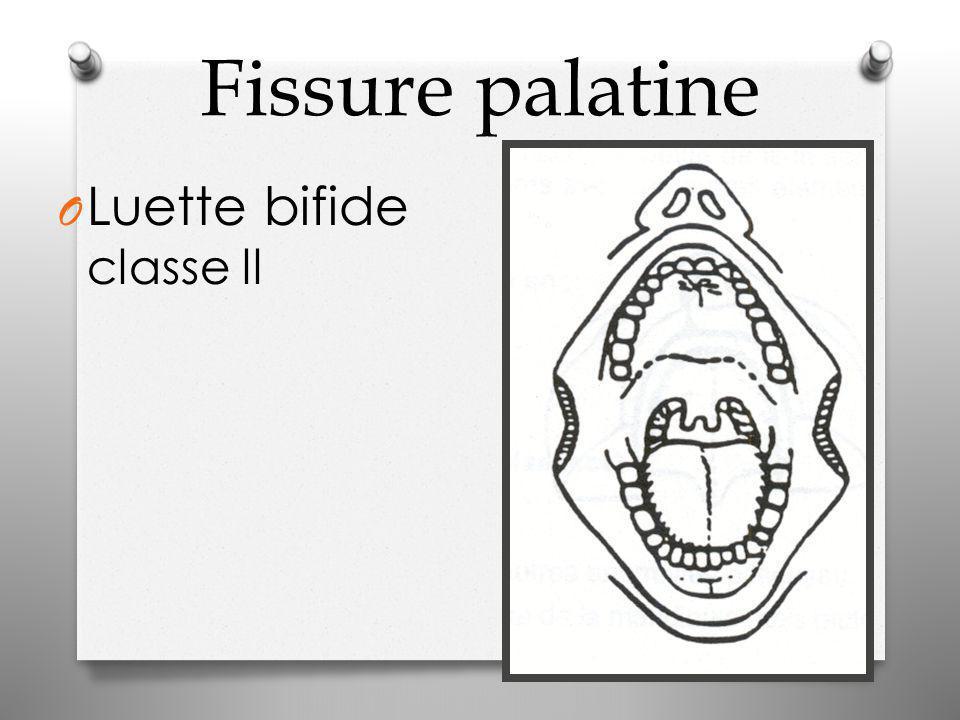 Fissure palatine O Luette bifide classe ll