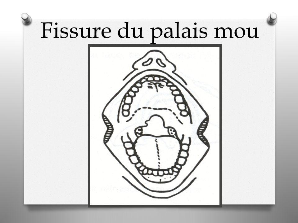 Fissure du palais mou