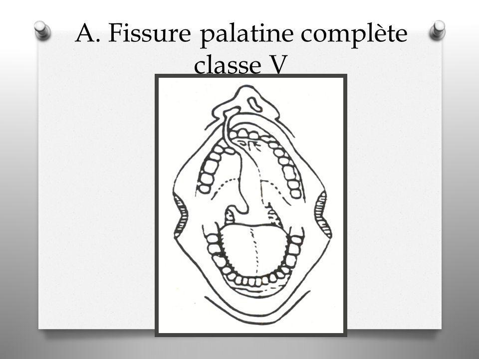 A. Fissure palatine complète classe V