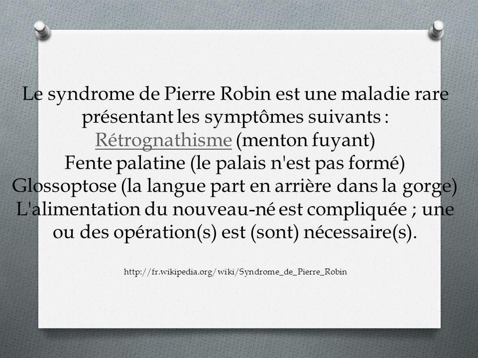 Le syndrome de Pierre Robin est une maladie rare présentant les symptômes suivants : Rétrognathisme (menton fuyant) Fente palatine (le palais n'est pa