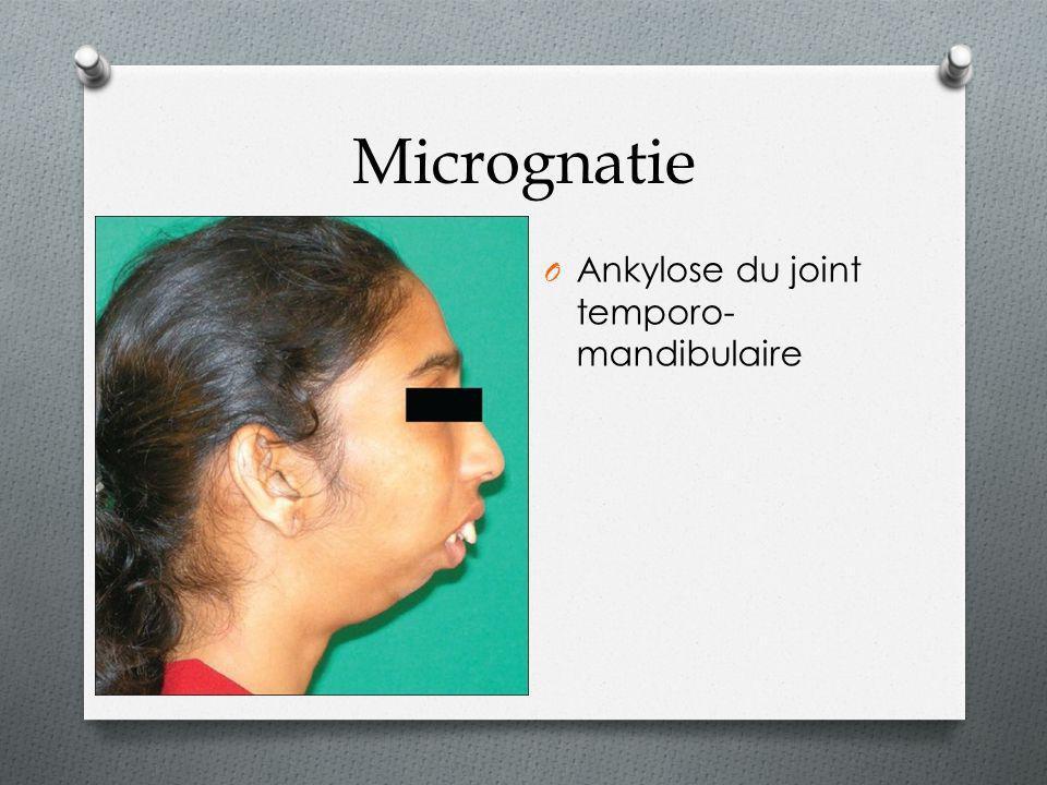 O Ankylose du joint temporo- mandibulaire