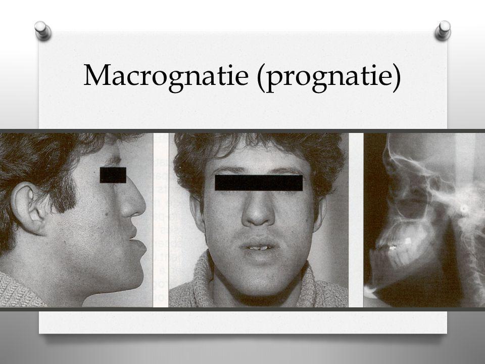 Macrognatie (prognatie)