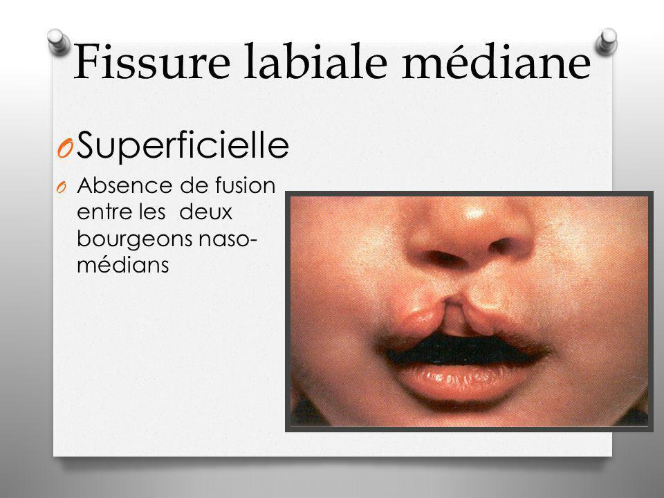 Fissure labiale médiane O Superficielle O Absence de fusion entre les deux bourgeons naso- médians