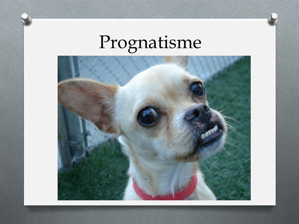Prognatisme