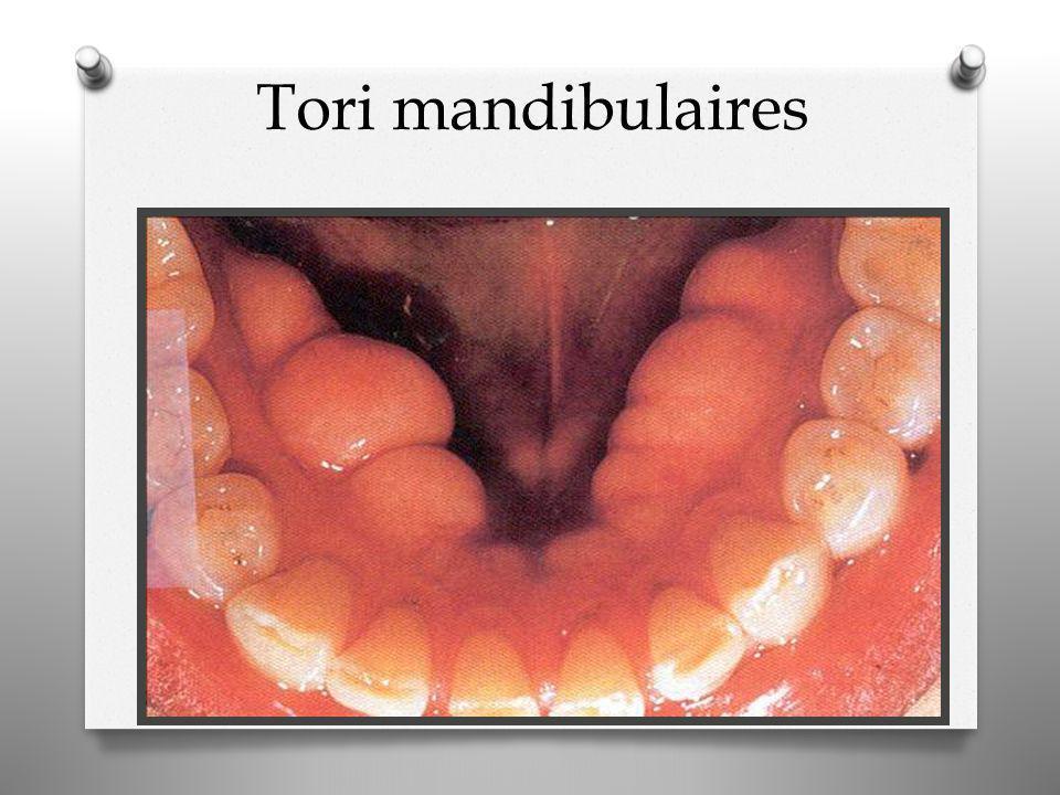 Tori mandibulaires