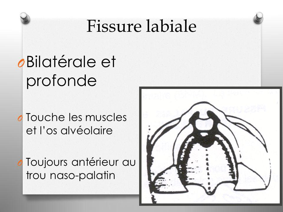 Fissure labiale O Bilatérale et profonde O Touche les muscles et l'os alvéolaire O Toujours antérieur au trou naso-palatin