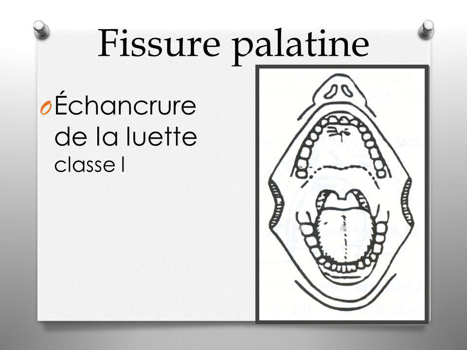 Fissure palatine O Échancrure de la luette classe l
