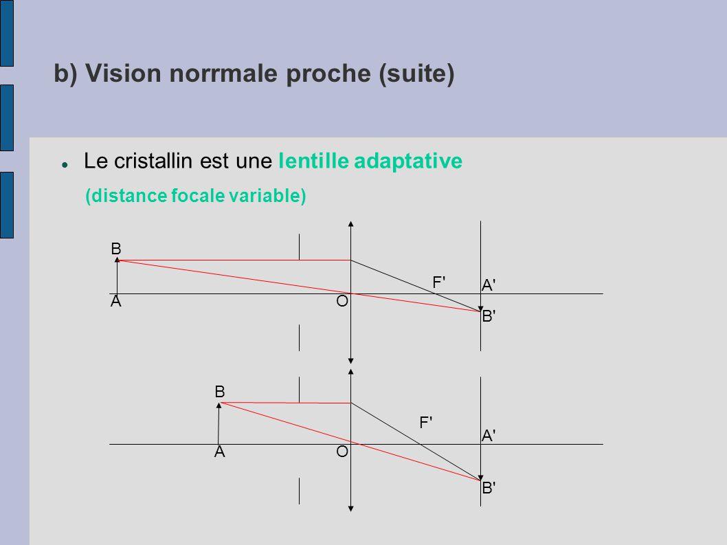 Rétine centrale macula Hémorragie Nerf optique Vaisseaux Fond d'œil souffrant de rétinothérapie