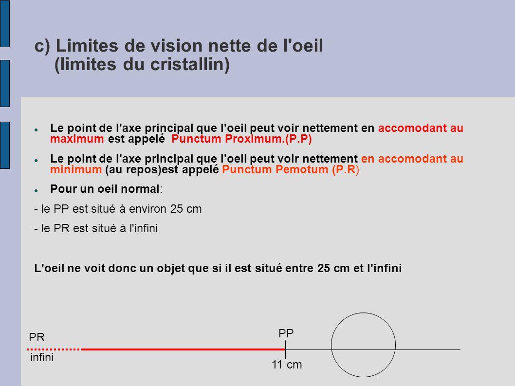 3 – Les défauts de l oeil a) l oeil myope OF myope F emmétrope La distance focale de l'œil myope est trop courte.