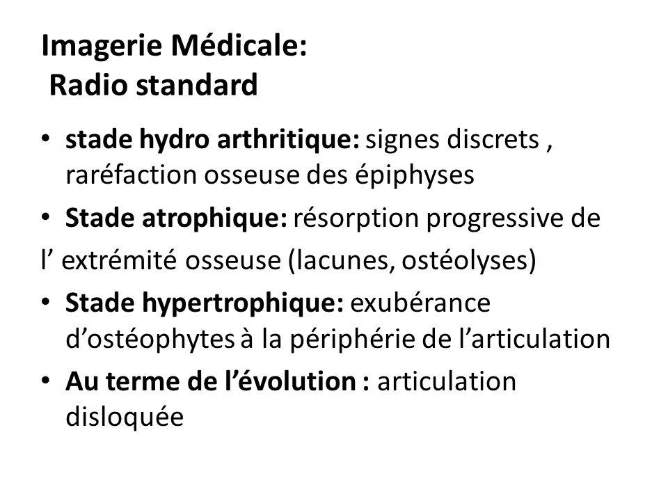 Imagerie Médicale: Radio standard stade hydro arthritique: signes discrets, raréfaction osseuse des épiphyses Stade atrophique: résorption progressive