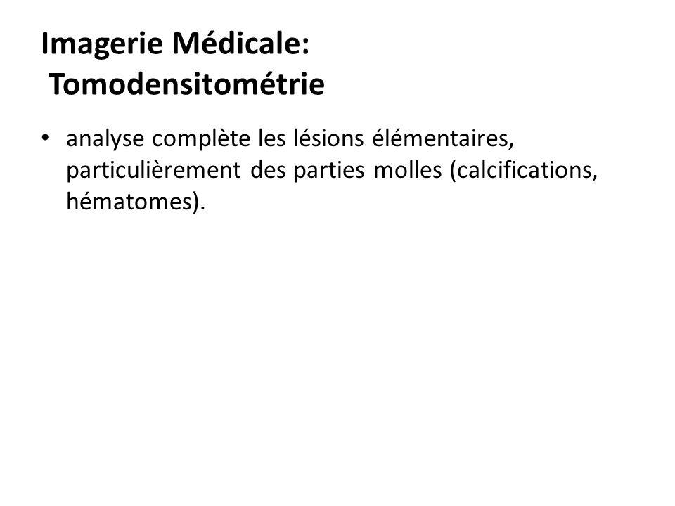 Imagerie Médicale: Tomodensitométrie analyse complète les lésions élémentaires, particulièrement des parties molles (calcifications, hématomes).