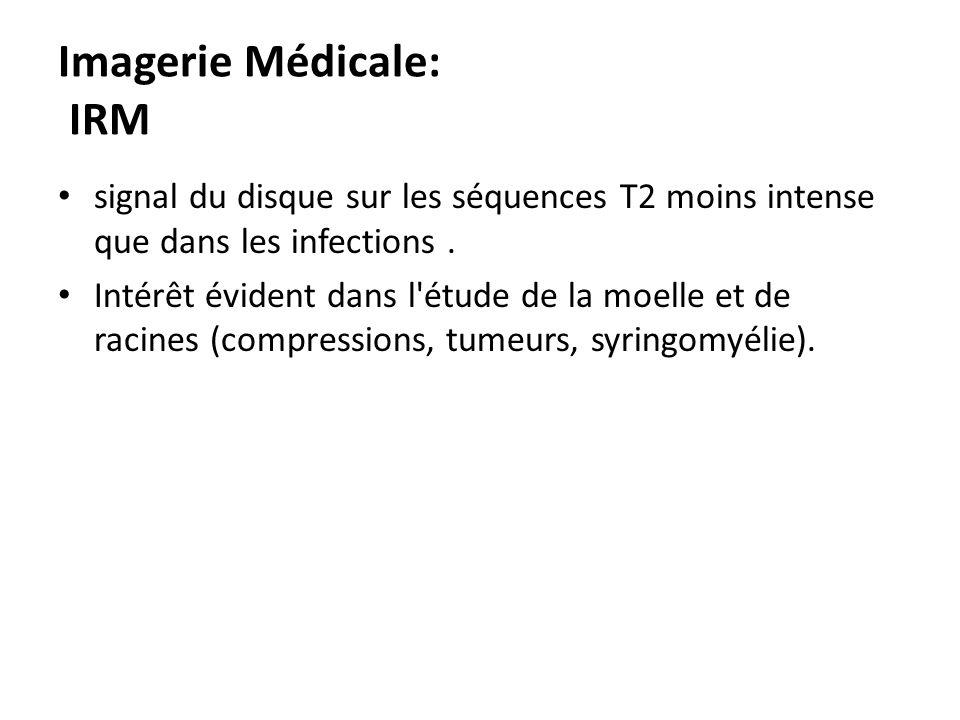 Imagerie Médicale: IRM signal du disque sur les séquences T2 moins intense que dans les infections. Intérêt évident dans l'étude de la moelle et de ra