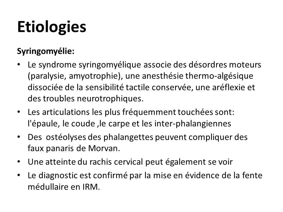 Etiologies Syringomyélie: Le syndrome syringomyélique associe des désordres moteurs (paralysie, amyotrophie), une anesthésie thermo-algésique dissocié