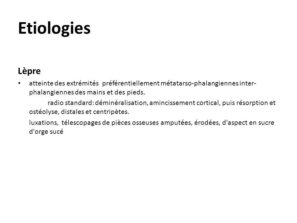 Etiologies Lèpre atteinte des extrémités préférentiellement métatarso-phalangiennes inter- phalangiennes des mains et des pieds. radio standard: démin