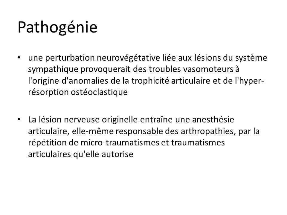 Pathogénie une perturbation neurovégétative liée aux lésions du système sympathique provoquerait des troubles vasomoteurs à l'origine d'anomalies de l