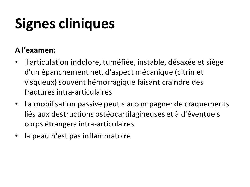 Signes cliniques A l'examen: l'articulation indolore, tuméfiée, instable, désaxée et siège d'un épanchement net, d'aspect mécanique (citrin et visqueu