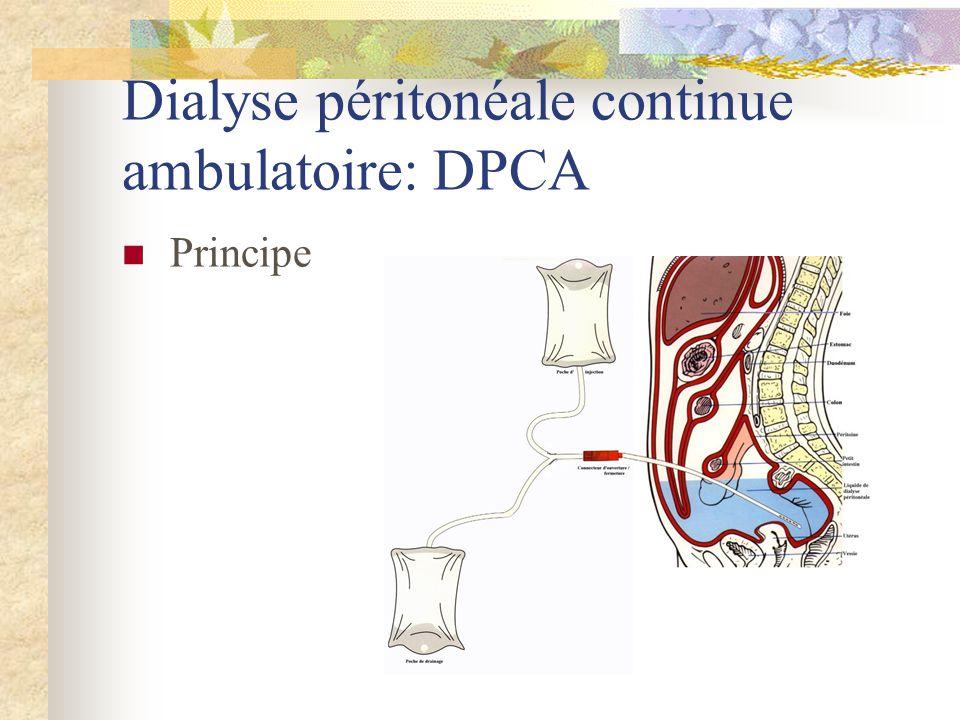 Dialyse péritonéale continue ambulatoire: DPCA Principe