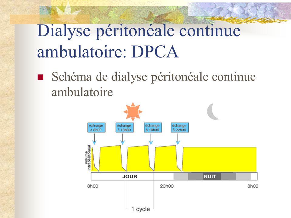 Schéma de dialyse péritonéale continue ambulatoire