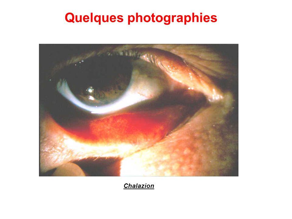 Chalazion Quelques photographies