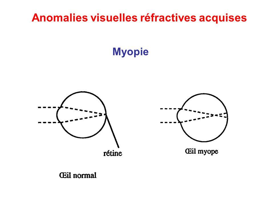Myopie Anomalies visuelles réfractives acquises