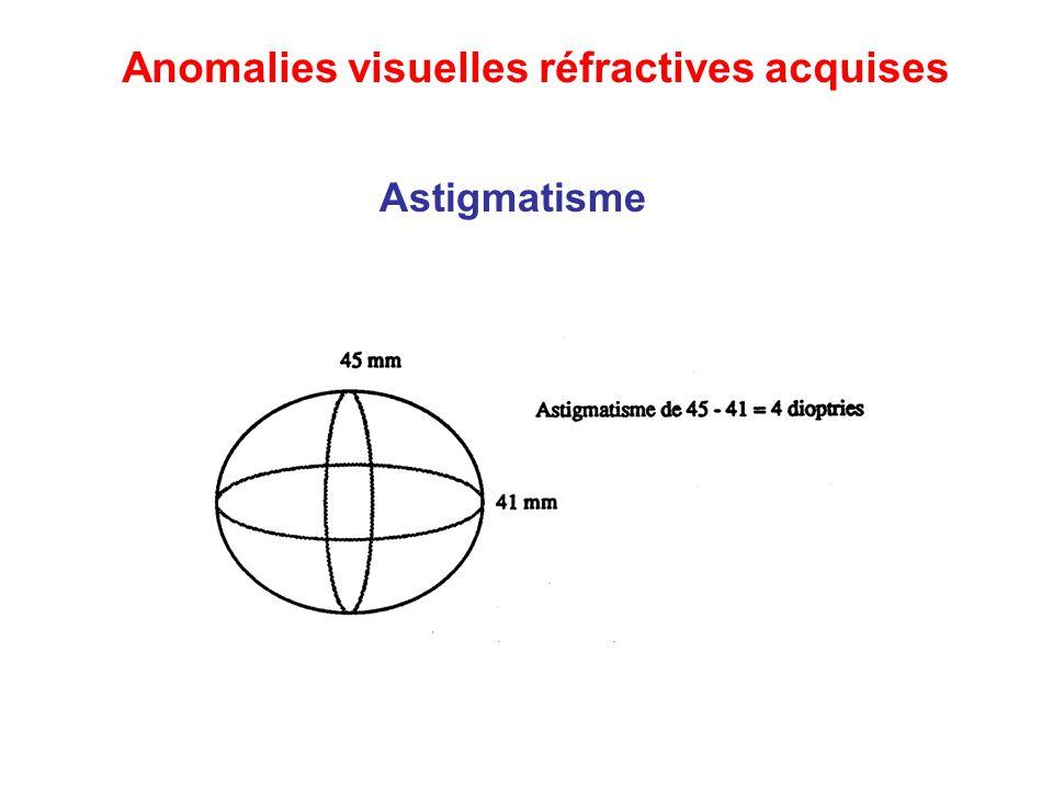Astigmatisme Anomalies visuelles réfractives acquises
