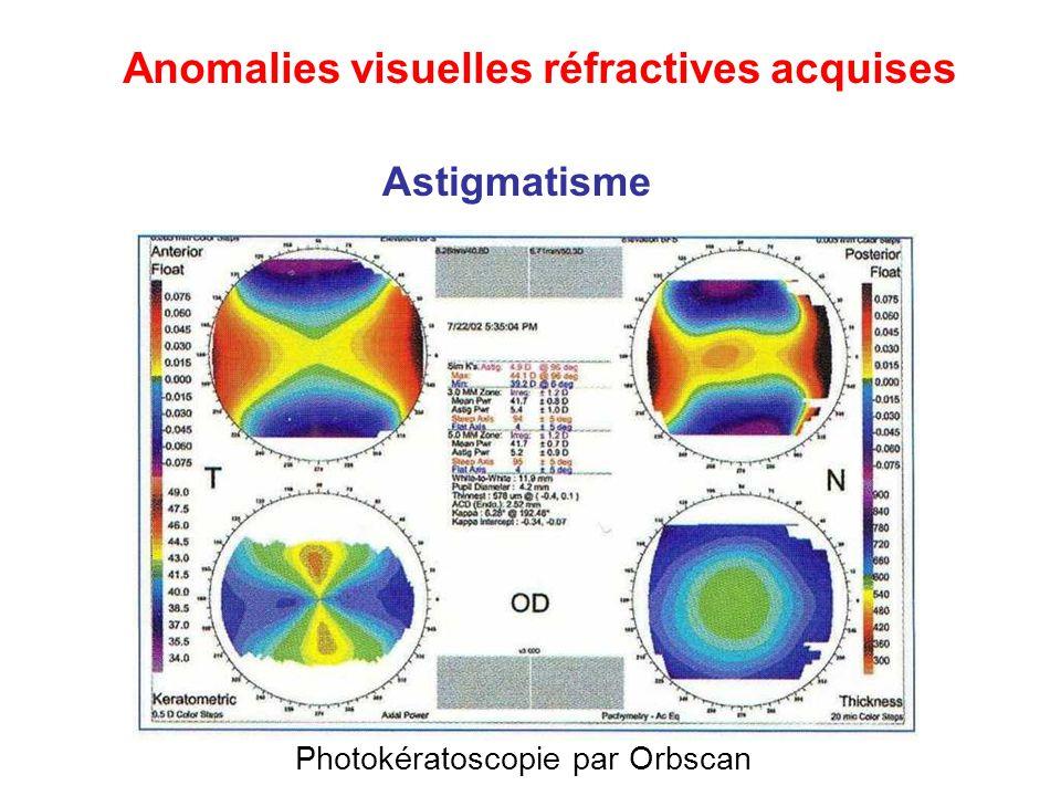 Photokératoscopie par Orbscan Astigmatisme Anomalies visuelles réfractives acquises