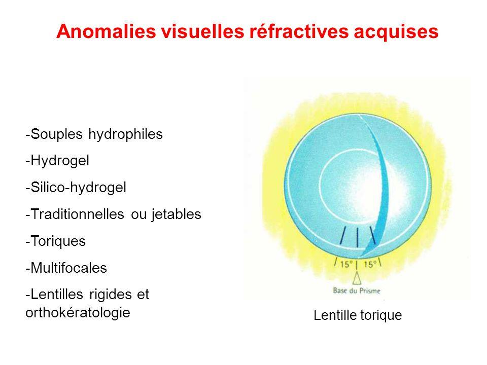 -Souples hydrophiles -Hydrogel -Silico-hydrogel -Traditionnelles ou jetables -Toriques -Multifocales -Lentilles rigides et orthokératologie Lentille t