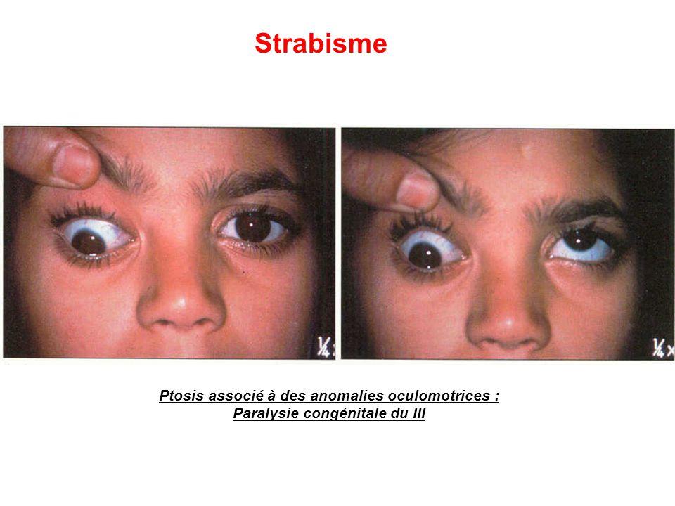 Ptosis associé à des anomalies oculomotrices : Paralysie congénitale du III Strabisme