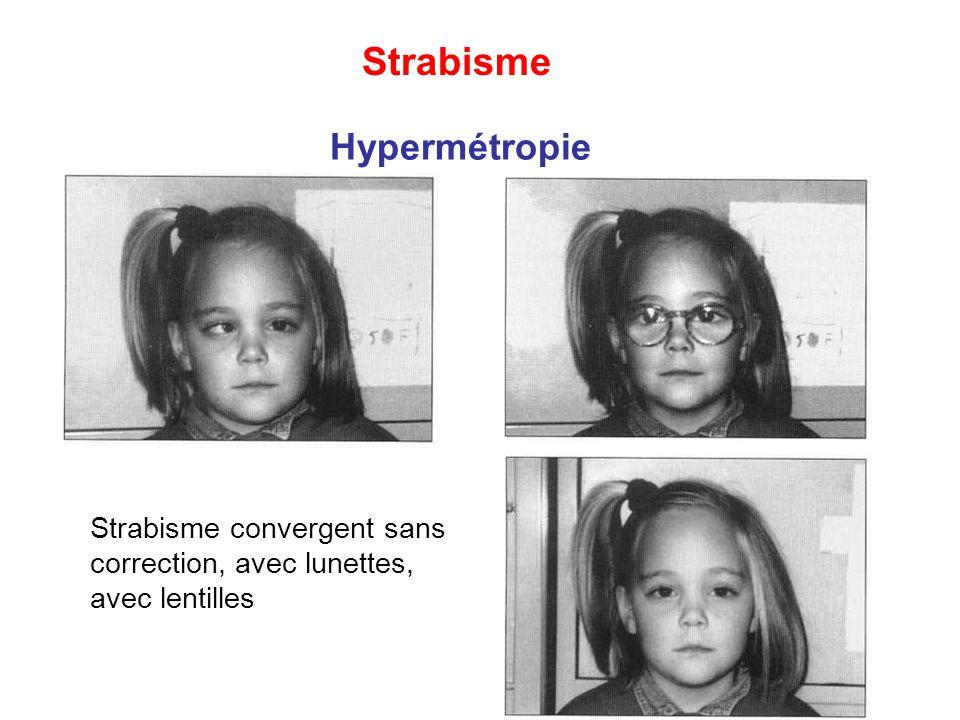 Strabisme convergent sans correction, avec lunettes, avec lentilles Hypermétropie Strabisme
