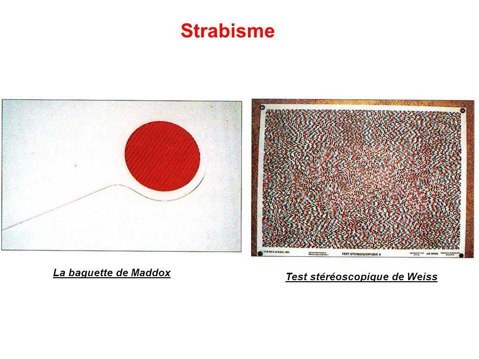 La baguette de Maddox Test stéréoscopique de Weiss Strabisme