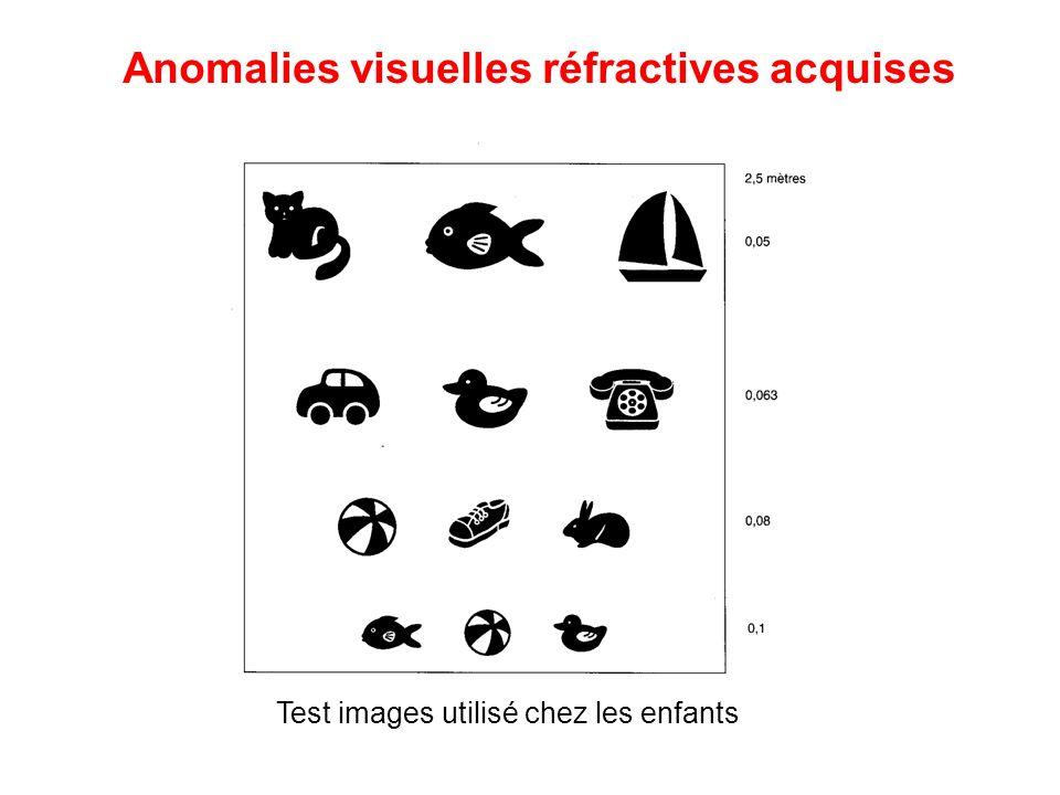 Test images utilisé chez les enfants Anomalies visuelles réfractives acquises