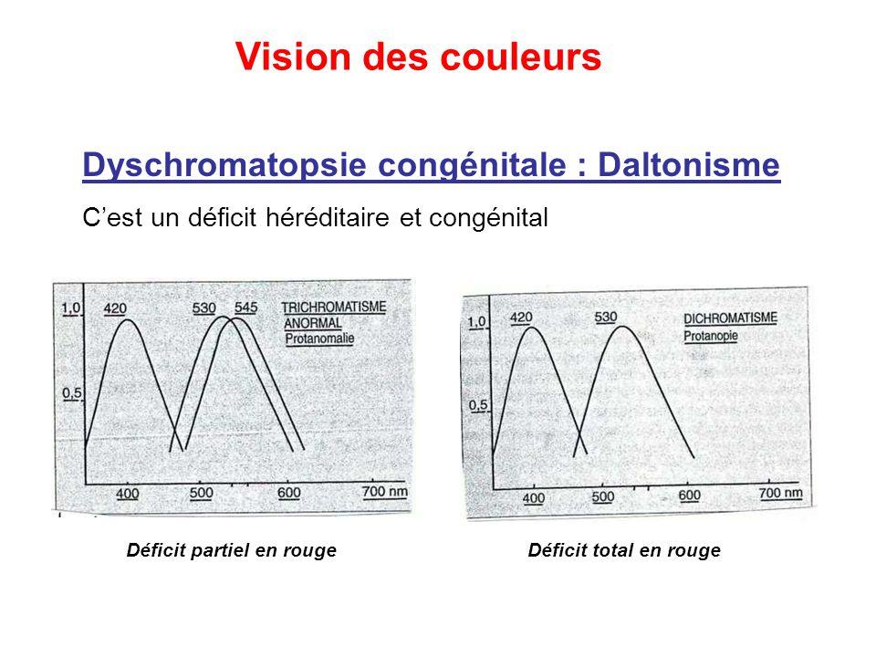 Dyschromatopsie congénitale : Daltonisme C'est un déficit héréditaire et congénital Déficit partiel en rougeDéficit total en rouge Vision des couleurs