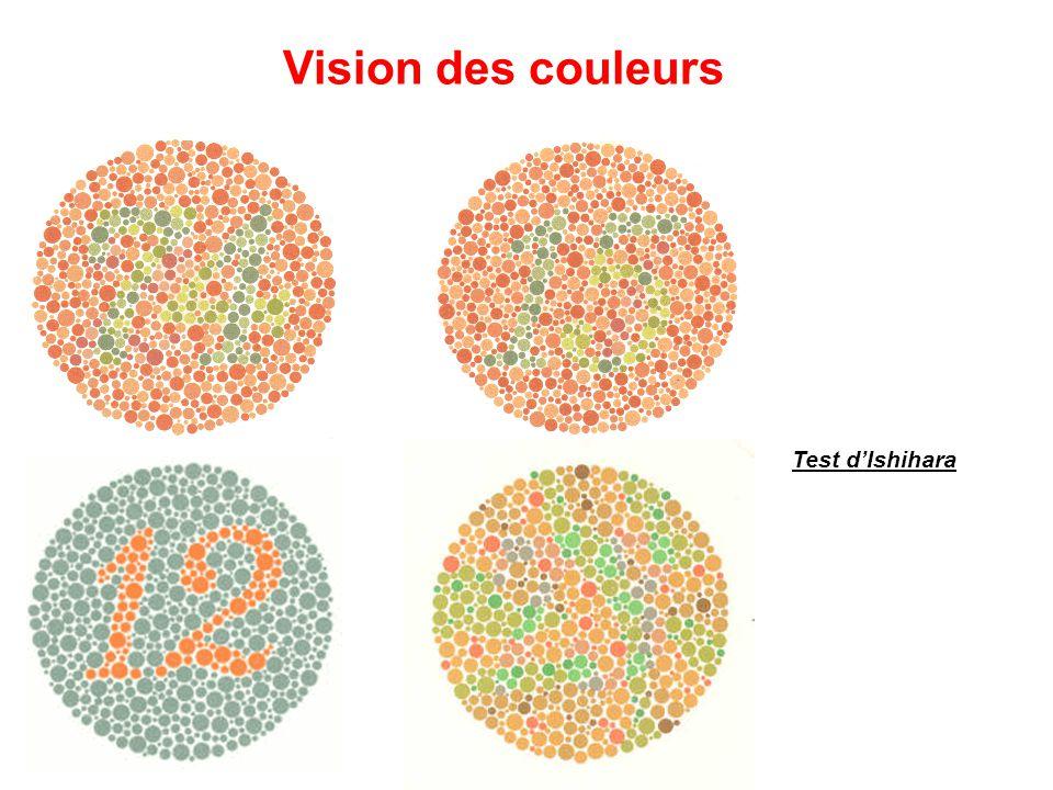 Test d'Ishihara Vision des couleurs