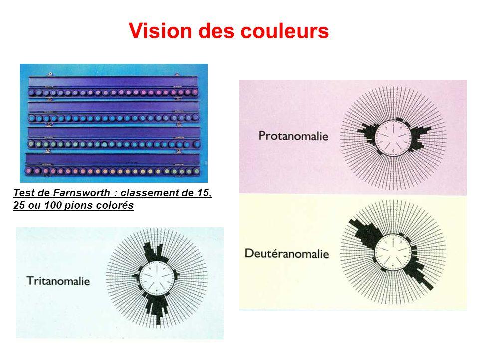 Test de Farnsworth : classement de 15, 25 ou 100 pions colorés Vision des couleurs