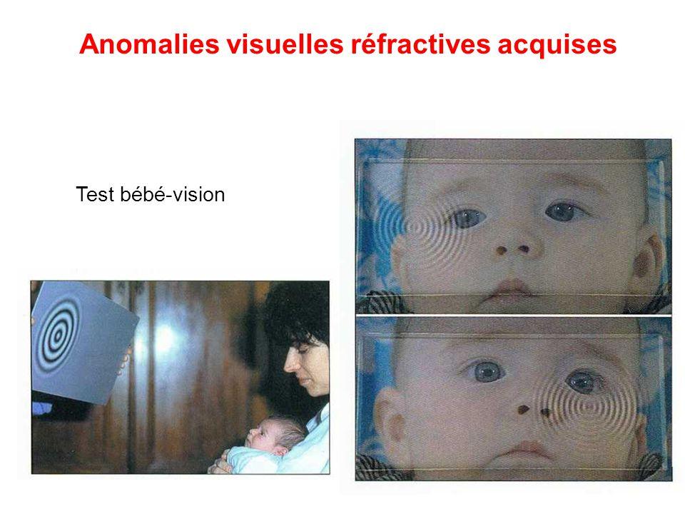 Anomalies réfractives acquises : -Hypermétropie -Myopie -Astigmatisme Anomalies visuelles réfractives acquises