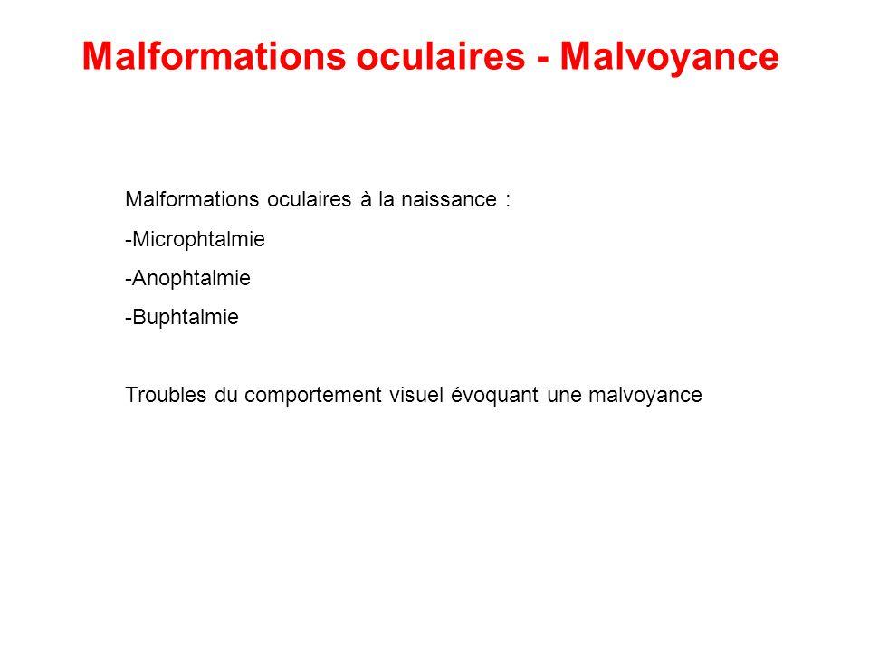 Malformations oculaires à la naissance : -Microphtalmie -Anophtalmie -Buphtalmie Troubles du comportement visuel évoquant une malvoyance Malformations