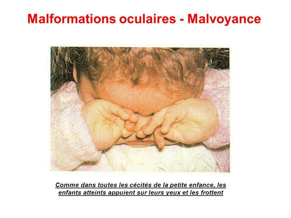 Comme dans toutes les cécités de la petite enfance, les enfants atteints appuient sur leurs yeux et les frottent Malformations oculaires - Malvoyance