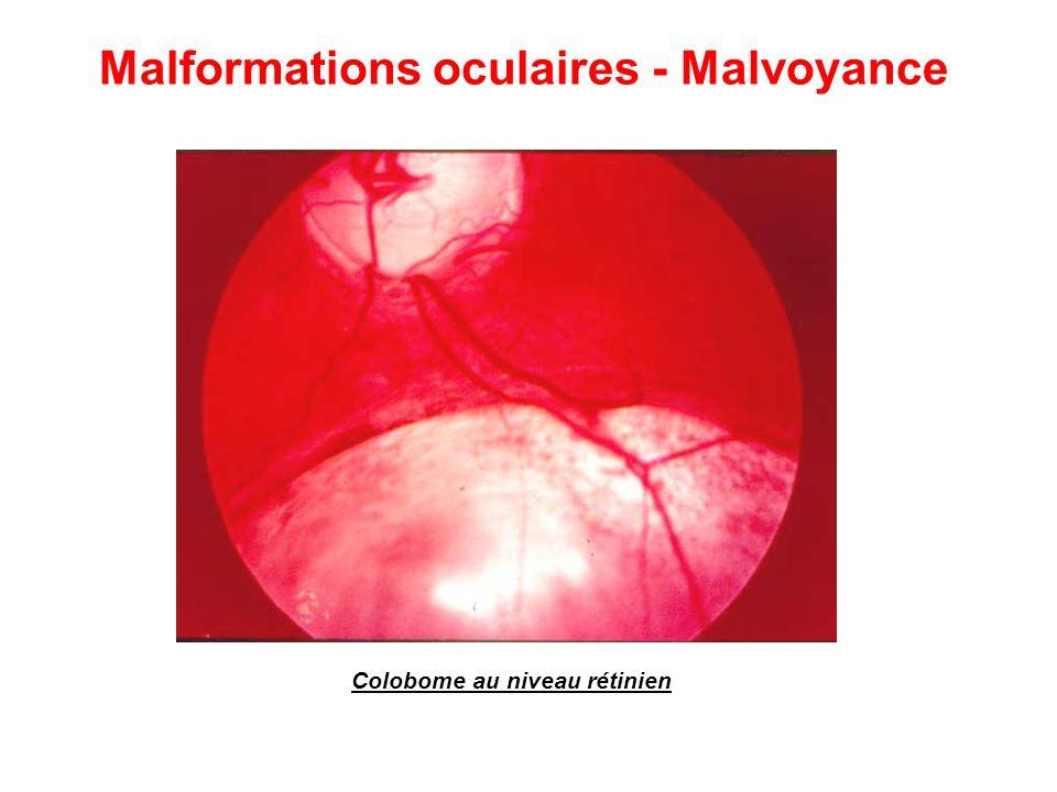 Colobome au niveau rétinien Malformations oculaires - Malvoyance