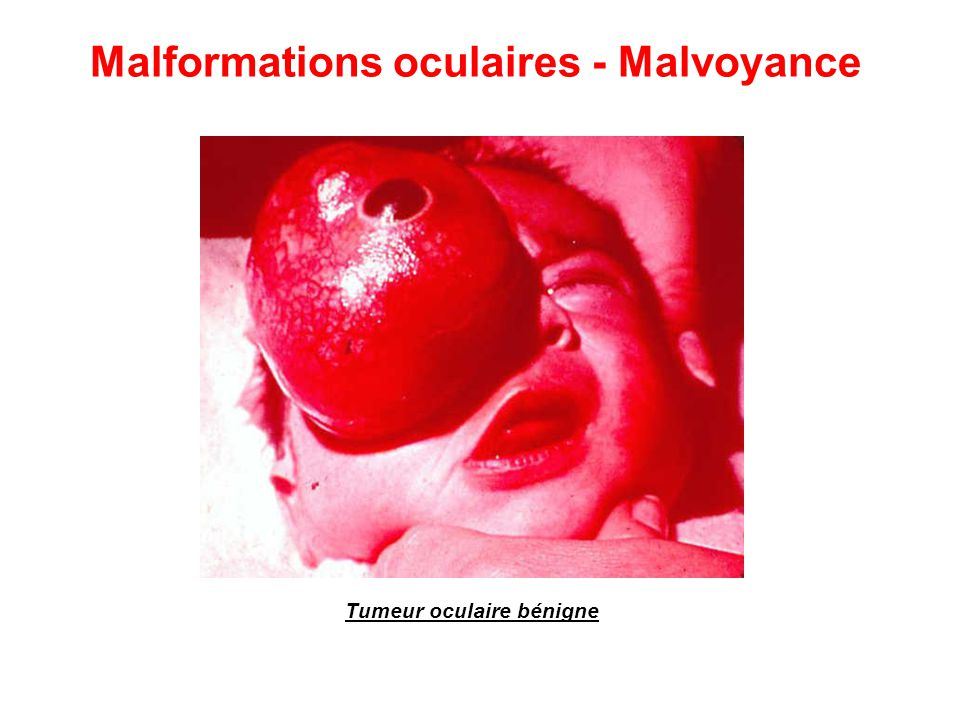 Tumeur oculaire bénigne Malformations oculaires - Malvoyance