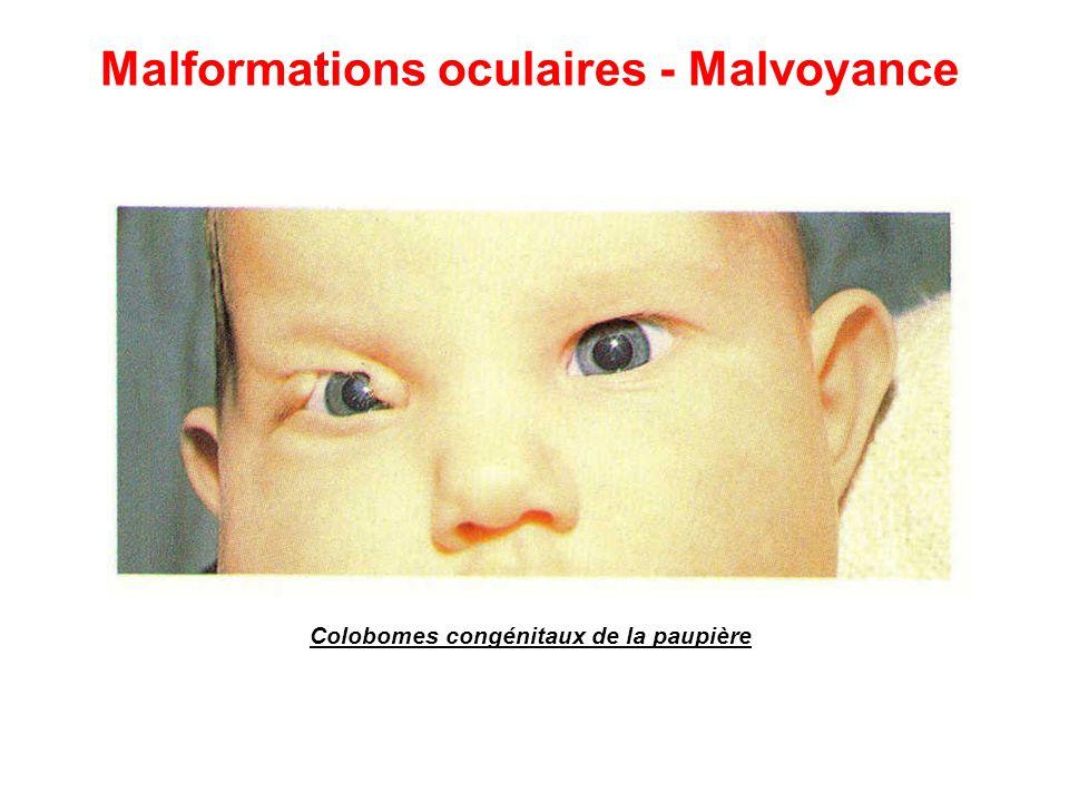 Colobomes congénitaux de la paupière Malformations oculaires - Malvoyance