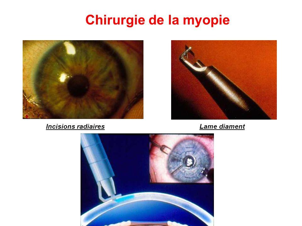 Chirurgie de la myopie Incisions radiairesLame diament