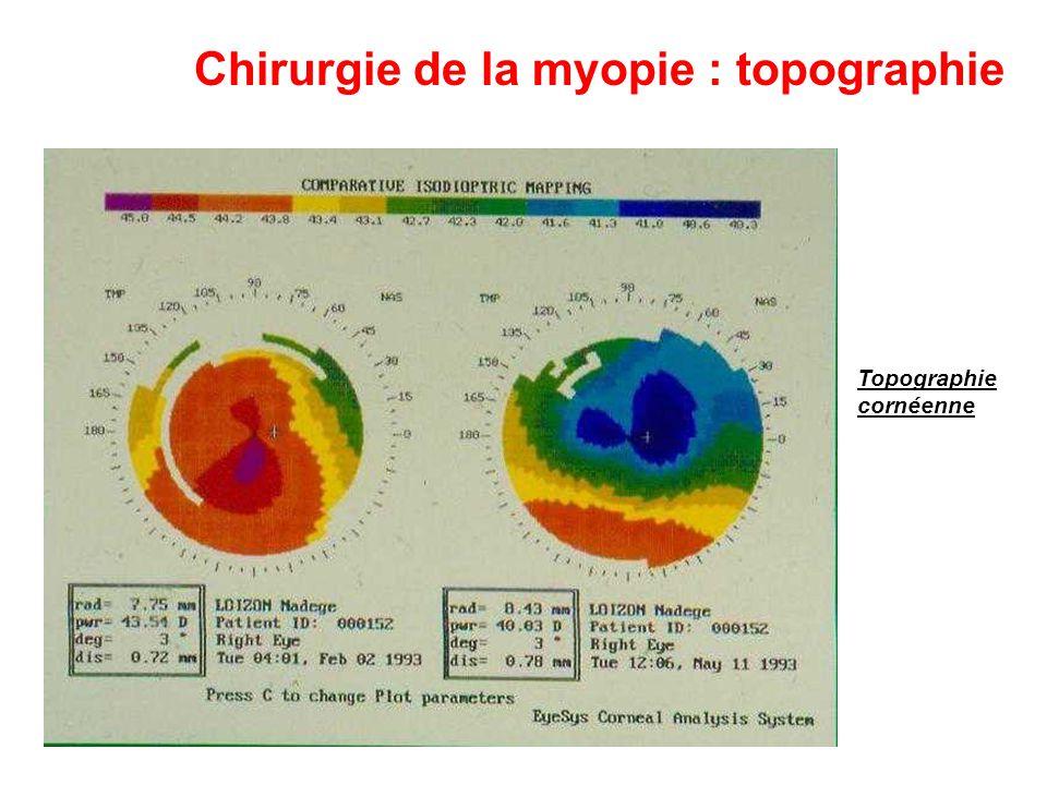 Chirurgie de la myopie : topographie Topographie cornéenne