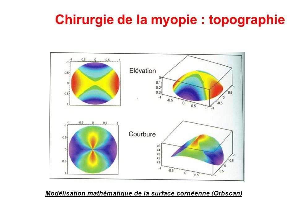 Chirurgie de la myopie : topographie Modélisation mathématique de la surface cornéenne (Orbscan)