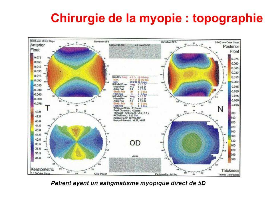Chirurgie de la myopie : topographie Patient ayant un astigmatisme myopique direct de 5D