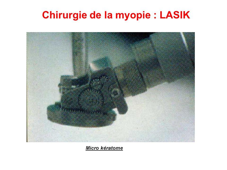 Chirurgie de la myopie : LASIK Micro kératome