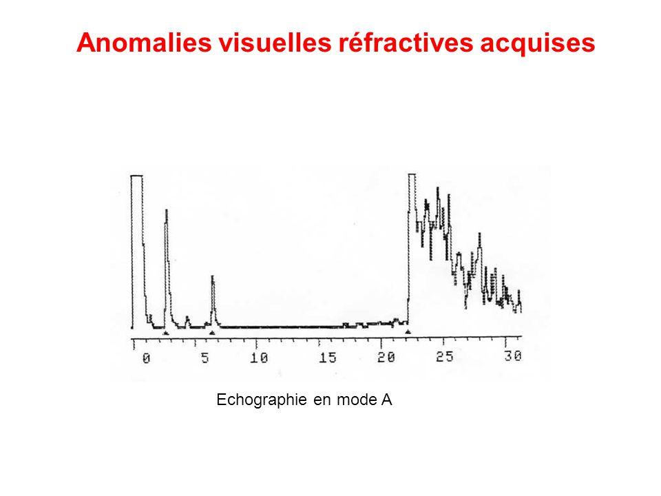 Echographie en mode A Anomalies visuelles réfractives acquises