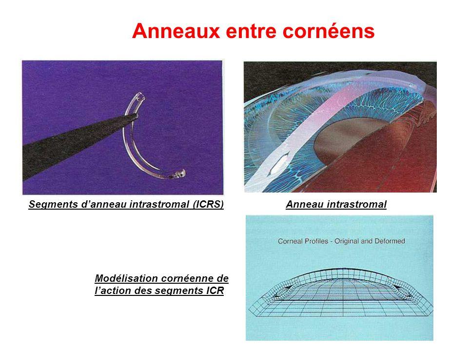 Anneaux entre cornéens Segments d'anneau intrastromal (ICRS)Anneau intrastromal Modélisation cornéenne de l'action des segments ICR